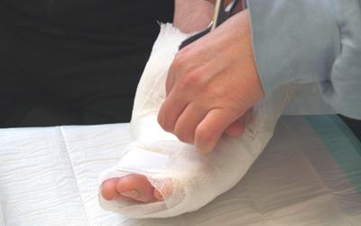Verbandswechsel in der Handchirurgie